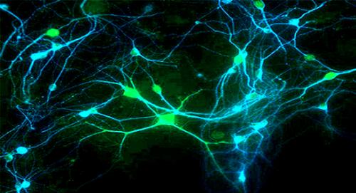 Colloque : Neurosciences, en quoi vont-elles modifier notre vie ?